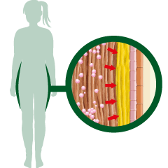 Anti fat effect XLS Medical